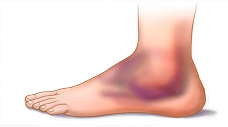 Distorsione di caviglia: Diagnosi e Trattamento