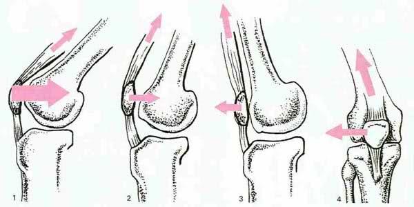 Femoro rotulea