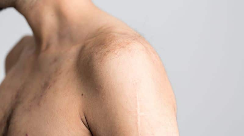 anatomia e biomeccanica della spalla
