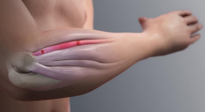 anatomia di gomito