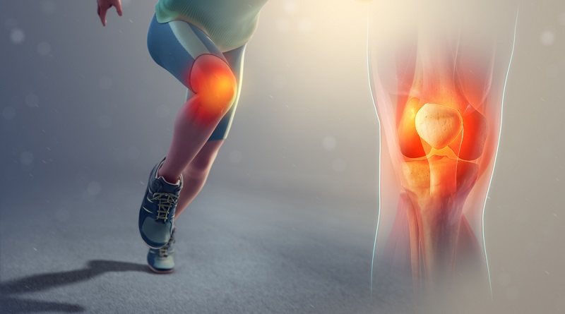 Eliminare il dolore anteriore al ginocchio