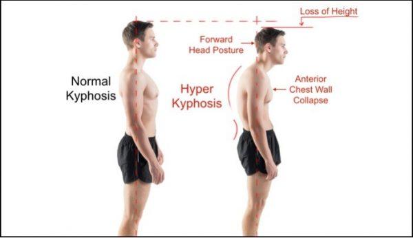Ben noto Come allargare le spalle? | La Scienza in palestra HY68