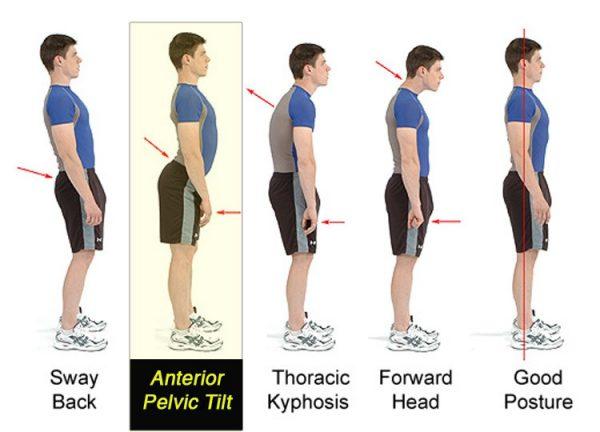 valutazione postura