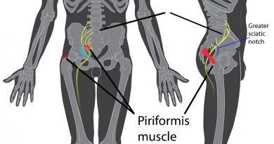 Il muscolo piriforme: dalla biomeccanica alle patologie della schiena