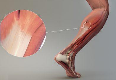 Le tendinopatie: cosa sono?