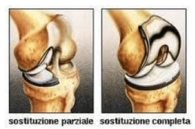 artroprotesi
