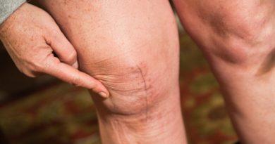 L'effetto delle cicatrici sul nostro corpo: classificazione e trattamento