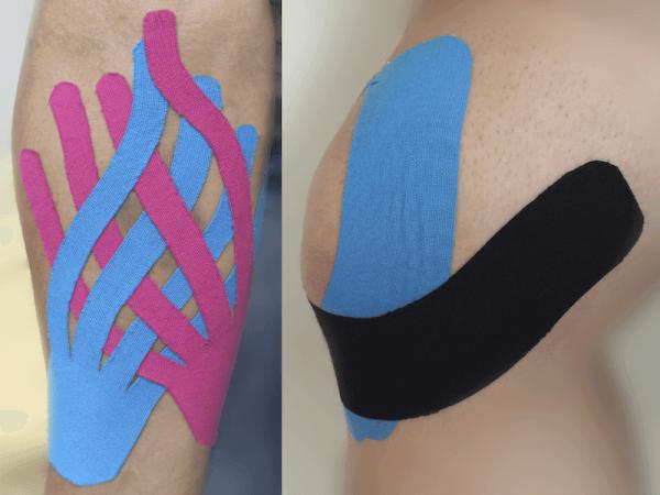 taping elastico o cerotti colorati