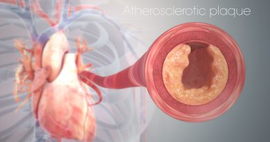 Malattia coronarica e depressione: effetti dell'esercizio fisico