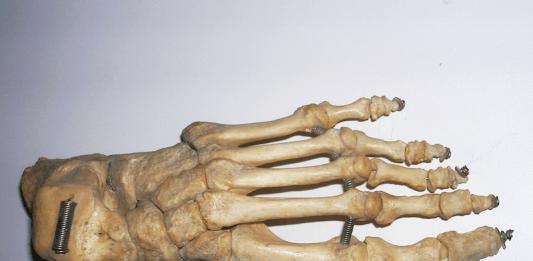 scafoide del piede
