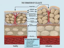 dieta per cellulite